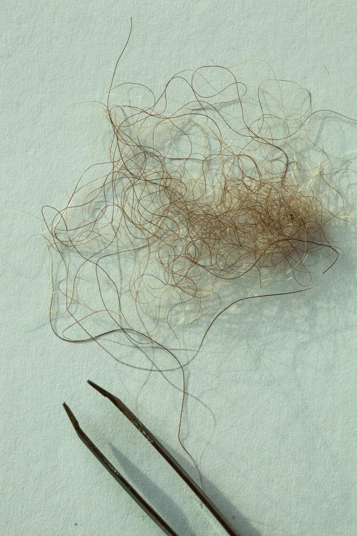 Hårprøve fra en påstått yeti i Nepal. Prøven viste seg å være fra en tibetansk brunbjørn.